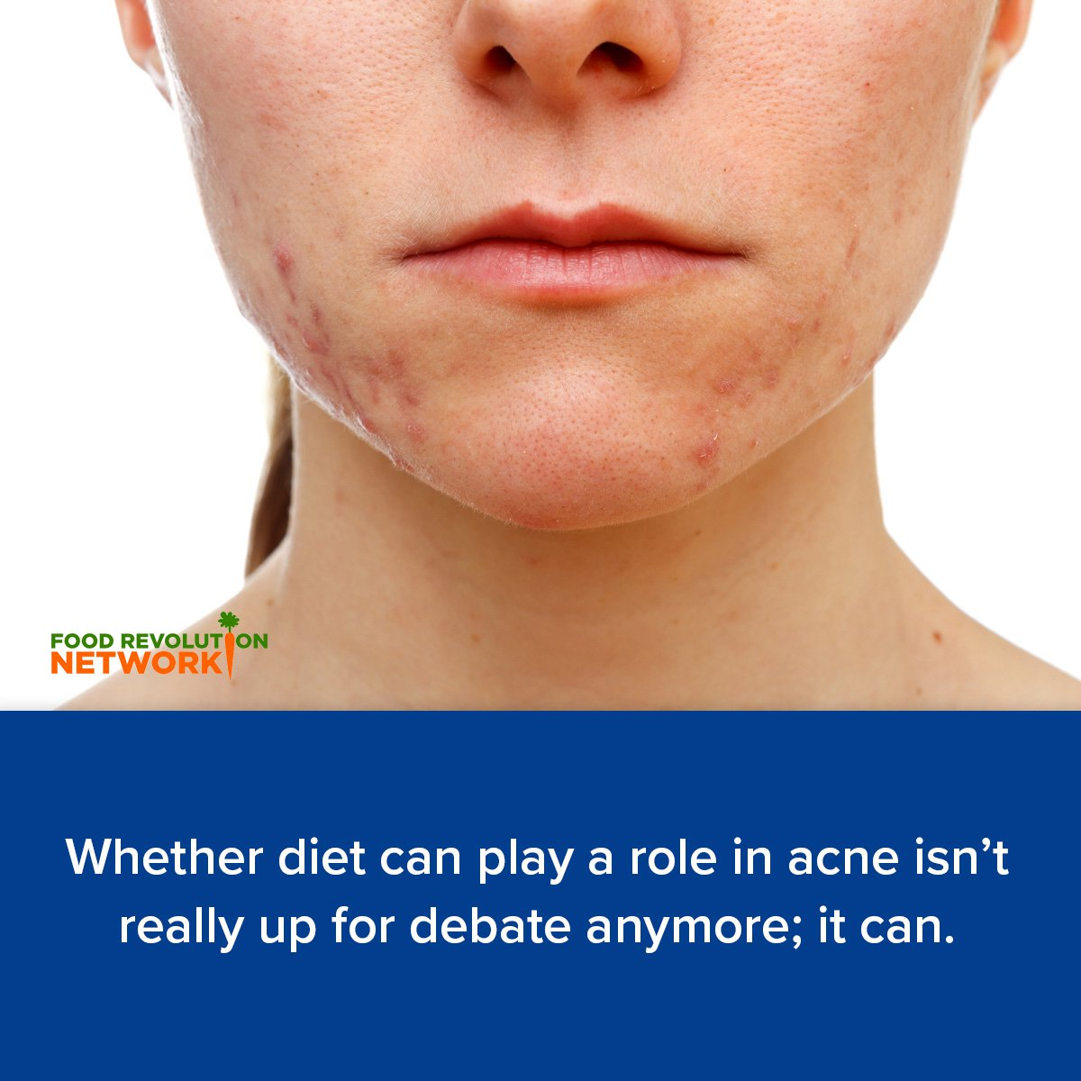 Whether diet can play a role in acne isn't really up for debate anymore; it can.