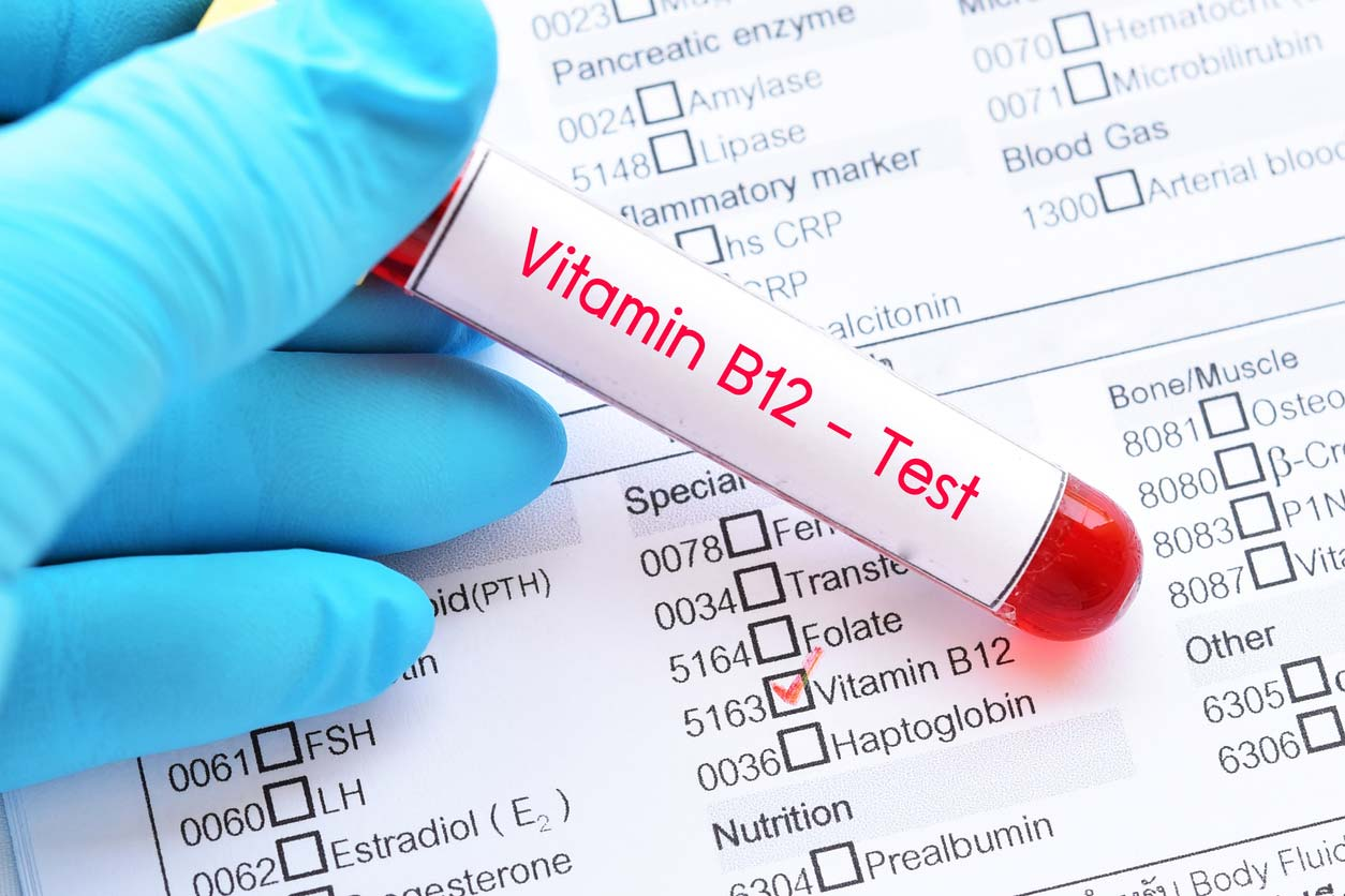 blood sample for vitamin b12 test