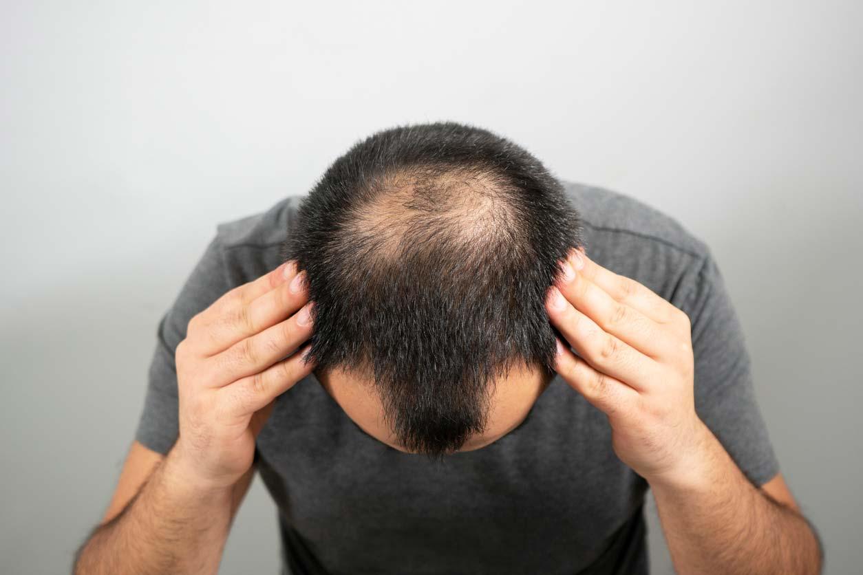 man showing sparse balding hair