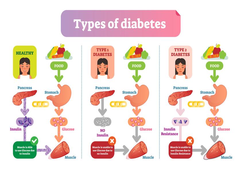Types of Diabetes